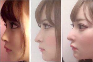黒崎みさ・整形キャバ嬢の画像